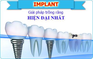 Implant giai phap trong rang hieu qua