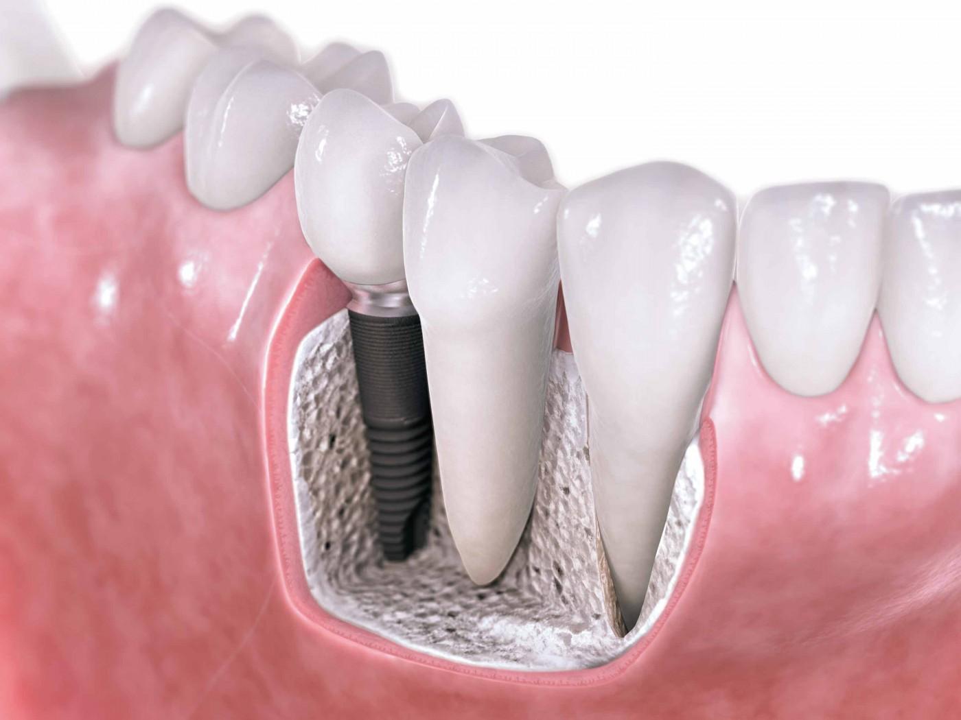 Thực hiện cấy ghép răng Implant