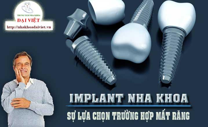 implant là gì? implant cho người cao tuổi