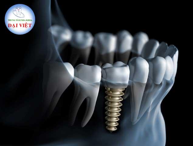cắm ghép implant