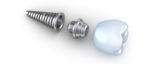 Thời gian cắm implant trong bao lâu?