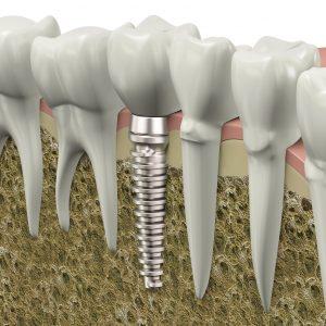 Quy trình cắm Implant