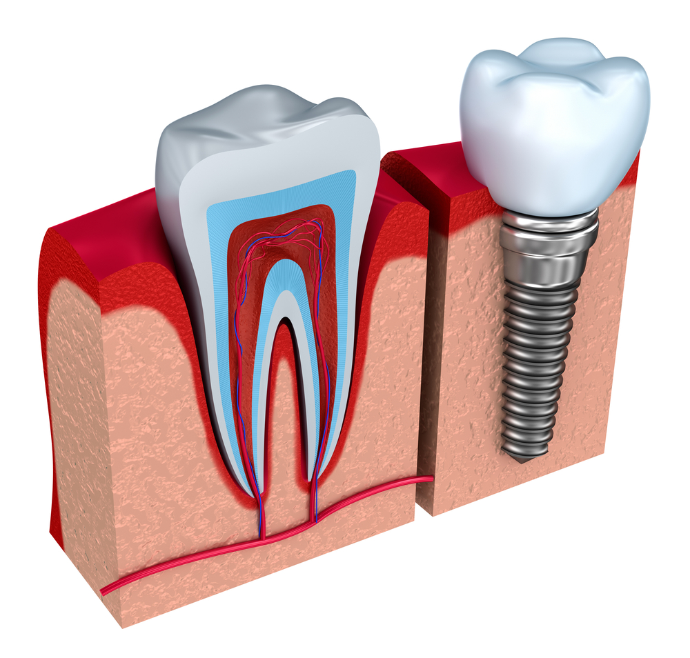 Implant là gì? Implant nha khoa và răng thật.