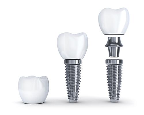 Cấy ghép răng bằng implant